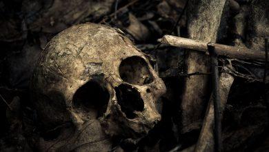 кости, череп