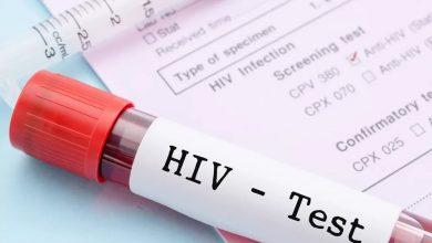Новый тип ВИЧ нашли в Конго