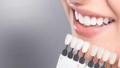Photo of Здоровье и красота зубов